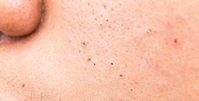 Lumps and bumps treatment