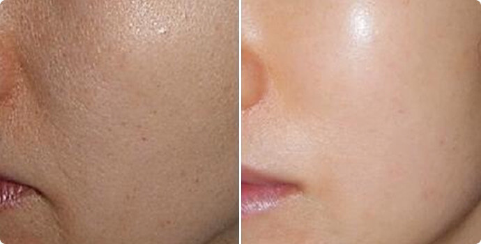 Baby Skin PDRN Before and After
