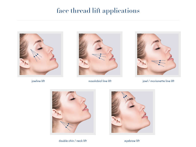 Face Thread Lift Applications