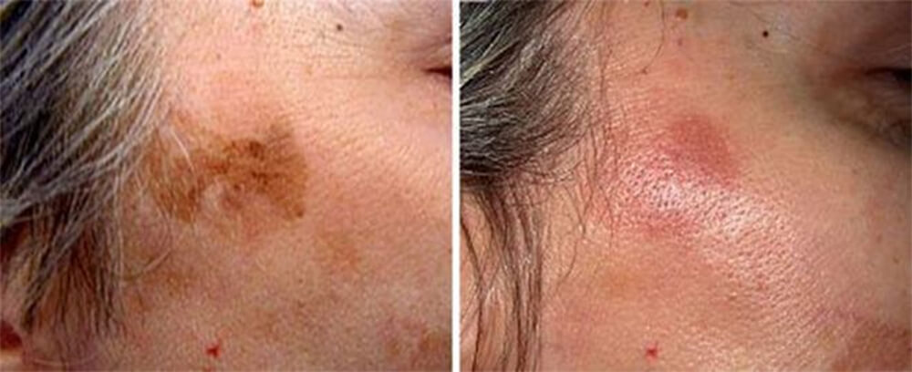Q Switch Laser Treatment Before and After